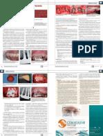 периимплантит.pdf