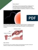 embarazo ectopico.doc