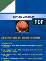 Tumori vescicali