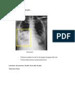 Gambaran Radiografi Thoraks