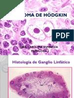 3 LINFOMA DE HODGKIN
