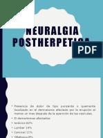 Neuralgia-postherpetica.pptx