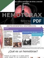 HEMOTÓRAX.pptx