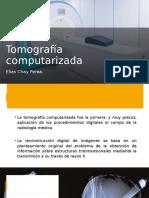 5.Tomografía computarizada