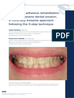 2. Full-mouth adhesive rehabilitation in case of severe dental erosion, a minimally invasive approach following the 3-step technique