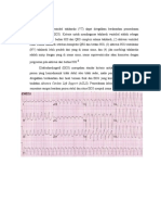 Diagnosis ventrikel takikardia.docx
