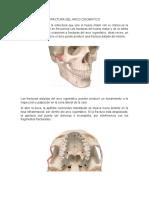 FRACTURA_DEL_ARCO_CIGOMATICO