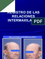 relacionesintermaxilaresenprotesistotal-130413173126-phpapp01.pdf
