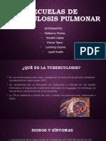 SECUELAS DE TUBERCULOSIS PULMONAR 11