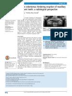 Complex Odontomas (2)