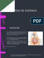 Fistula y Atresia Gastro Esofagica