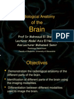 Brain Radio Logical Anatomy