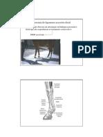 5-Desmotomia do ligamento acessório distal1