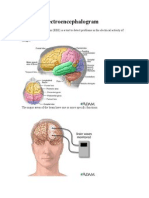 EEG or Electroencephalogram