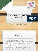 expoembarazoectopicocervical2015-150514162009-lva1-app6892