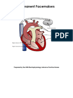 PMCC_PF_Support_PermanentPacemakers