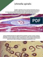 Trichinella spiralis.pptx