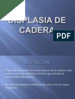 displasiadecadera-110218232117-phpapp02