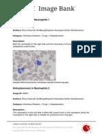 Infectious Disease (Fungi)