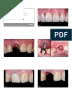 Clase Rehabilitacion con implantes sector estético.pdf