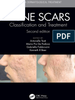 Acne Scars Classification and Treatment