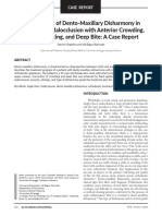 10763-management-of-dento-maxillary-disharmony-in-angle-class-i-malocclusion-with-anterior-crowding-midline-shifting-and-deep-bite-a-case-report.pdf