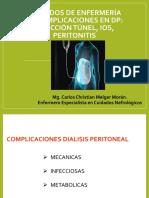 Cuidados de enfermería en complicaciones en DP