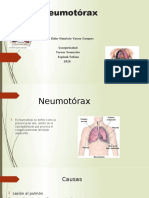 neumotorax 1123.pptx