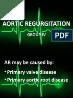 AORTIC-REGURGITATION