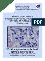 Normas Antituberculosos en Nicaragua