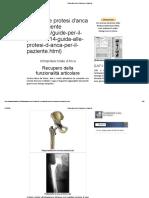 Guida alle protesi d'anca per il paziente