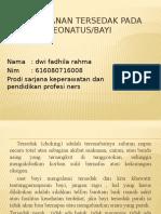 Penanganan tersedak pada neonatus dwi.pptx