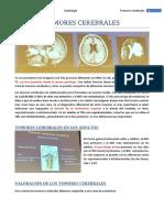 E23 TUMORES CEREBRALES-revisado