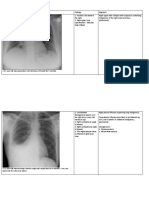 Radiology Notes for OSCE