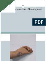 Propeller Flap for Dorsal Foot Reconstruction