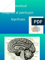 Diagnosticul-imagistic-al-patologiei-hipofizare
