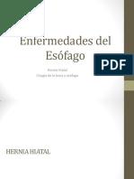Enfermedades del Esófago - Hernia, Cirugía
