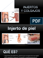 injertos-160328170210