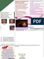 leaflet kanker servix punya Viyun