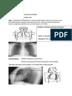 ATELIER  THORAX.pdf