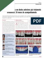 finalização estética em dentes anteriores pós tratamento ortodôntico