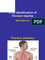 X-ray Identification of Thoracic Injuries..1