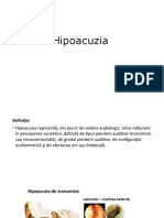 Hipoacuzia