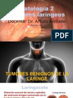 Laringe tumores