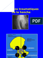 05- Luxations de la hanche.ppt