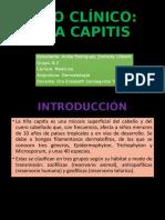 CASO CLÍNICO TIÑA CAPITIS.pptx
