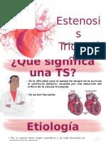 Estenosis Tricuspide.pptx