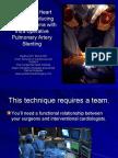 Hybrid Procedures for Pulmonary Artery Stenosis 2008