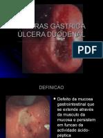 Ulcera gastrica y Duodenal..ppt
