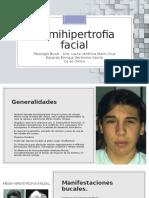 Hemihipertrofia facial